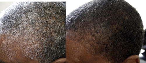 Scientific Discovery Reverses Gray Hair To Its Natural