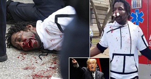 Protestor With Bloody Nose at Donald Trump Rally