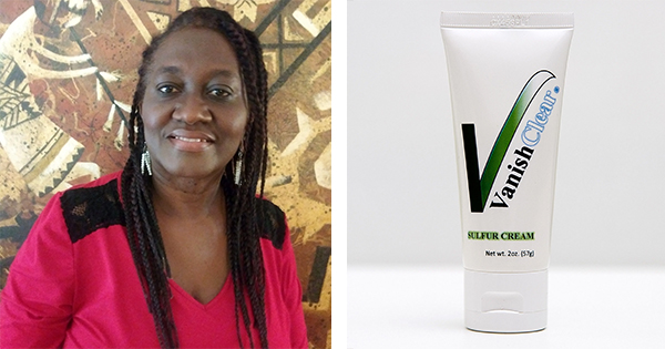 Mizell Mais, founder of Vanishclear Cream for Tinea Versicolor